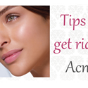 Tips To Get Rid Of Acne